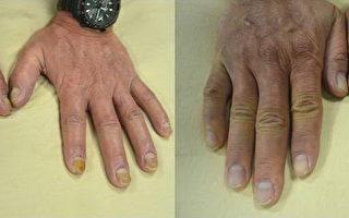 乾癬指甲病灶治療前(左)與治療後(右),增厚變色的指甲已復原。(新竹馬偕醫院提供)