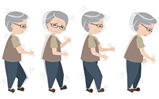 年长者走路变慢?当心得失智症