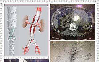 老翁腹痛  手術治療12公分腹主動脈瘤