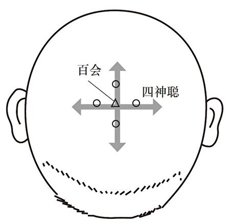 神聰穴共有四個位置,分別在百會穴的前、後、左、右一寸處。(Fontanella提供)
