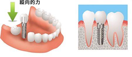 有经验的医生可以帮助安装形状、大小、受力角度合适的植牙体和牙冠。(NTDTV视频截图)