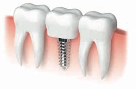 如果原牙保不住,很多人选择植牙代替。(图/shutterstock)