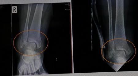 图为王久春女士2015年11月7日车祸当天的踝关节X光片(左)与同年12月4日的X光片(右)。对比可以看出,车祸3周后骨折处已有愈合趋势。(记者翻拍)