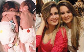 爱的抱抱是仙丹 早产双胞胎相拥救活虚弱小姊妹