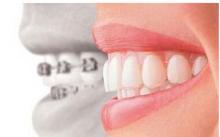 新型牙齿矫正技术还你轻松与美观