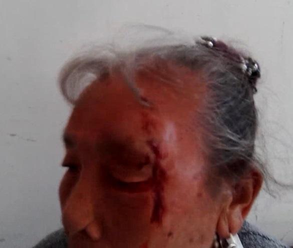 四川攀枝花市72岁老人因拆迁安置问题信防遭攀煤集团员工殴打重伤。(蒋福提供)
