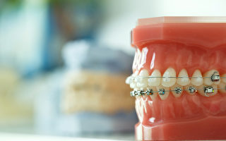 牙齿矫正前 你要想清楚这4件事
