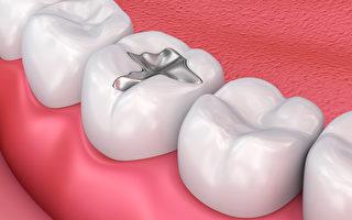 以后可能不需要补牙了!研究:牙能借力再生