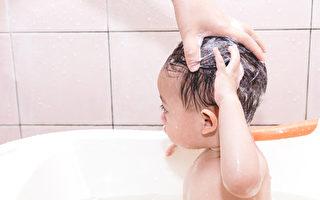 寶寶頭皮屑洗不掉?碰到4種皮膚症媽媽這樣做