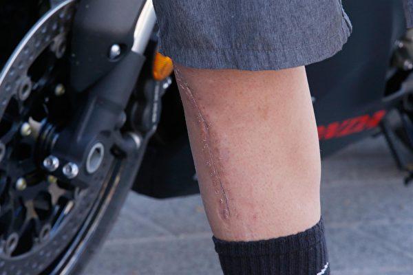 新发现可令受伤皮肤不长疤