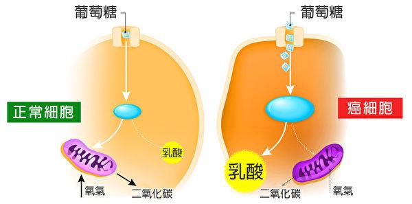 瓦式效應表明,癌細胞代謝糖的方式與正常細胞大不同。(Shutterstock/大紀元製圖)