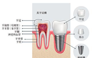 關於種植牙的壽命 6大關鍵因素