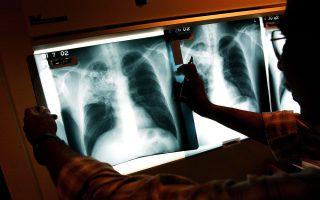 紐約市肺結核病發率突增 華人移民患者最多