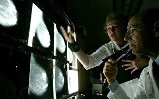 新发现有助治疗侵略性乳癌