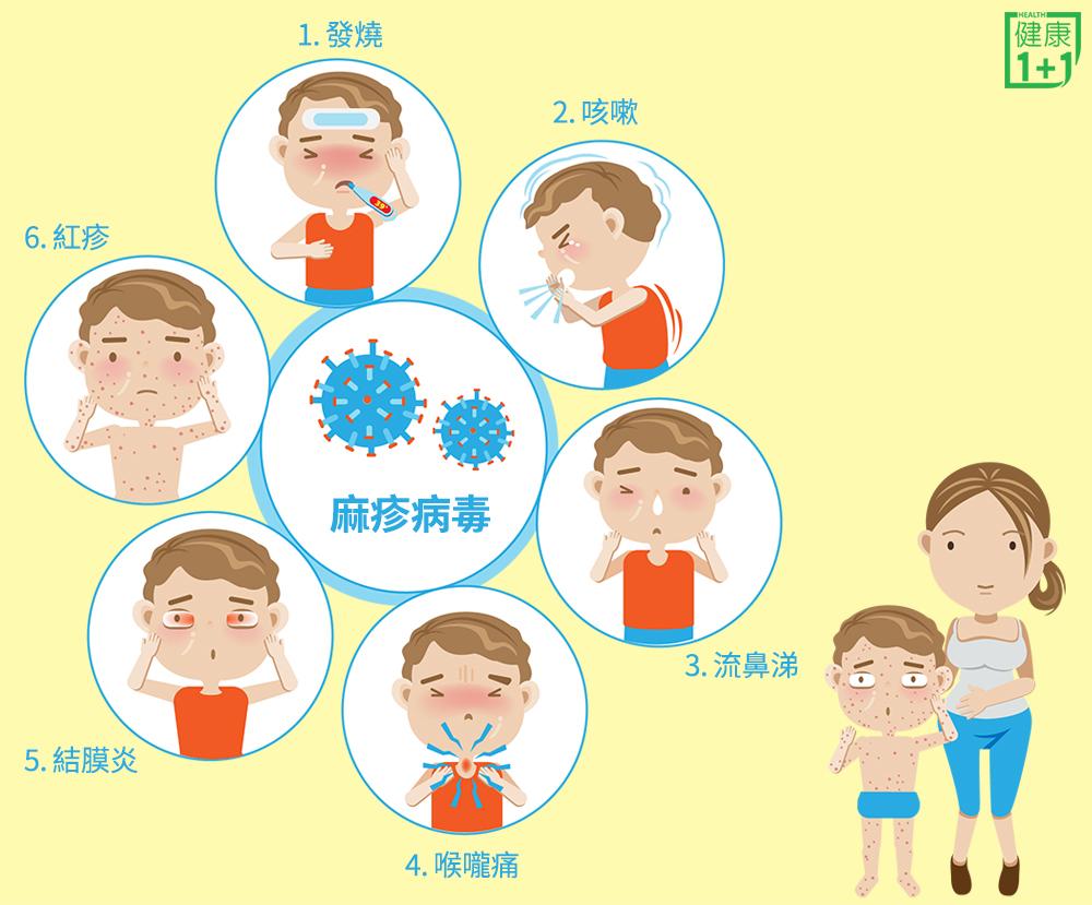 麻疹疫情延燒!一張圖看懂你該不該打疫苗 | 麻疹症狀 | 麻疹 ...