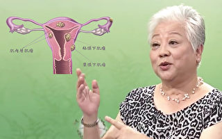 子宮肌瘤患者吃錯長更大  中醫師薦2碗藥膳