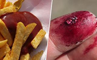 我们常吃的食用色素 竟是用虫做的?