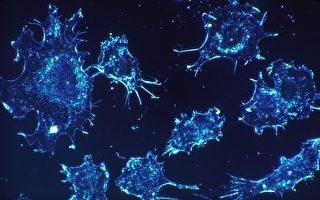 癌症為何會轉移?台科學家找到關鍵凶手