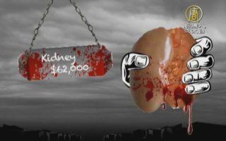 人體器官黑市曝光!美網「紅色市場」價格