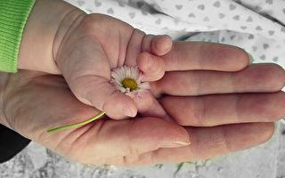 她生下沒有鼻子的女兒 寶寶的歷程照亮了世界