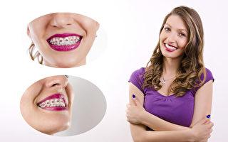 成人牙齿矫正 不只为了美