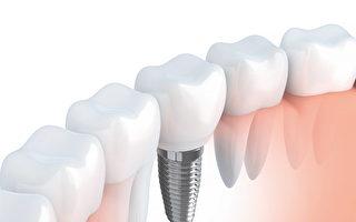病患推荐、舍近求远的好牙医