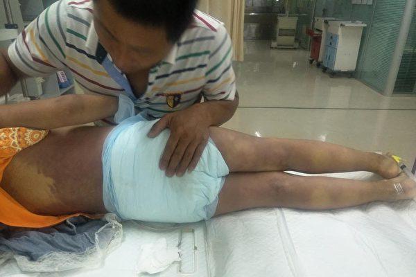黑龍江六歲女童發燒入院 12小時內突然死亡