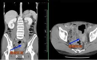 大腸癌年輕化  腹脹痛、血便、解便異常要注意