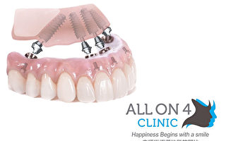 全口植牙改變人生 如何重新擁有一口最健康的牙齒?