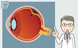 视网膜剥离:若不注意5个征兆 可致失明