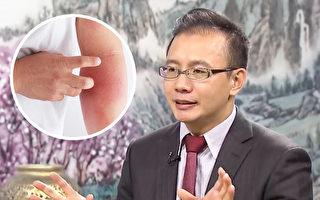 濕疹是皮膚病後期 中醫教你預防+1藥膳改善
