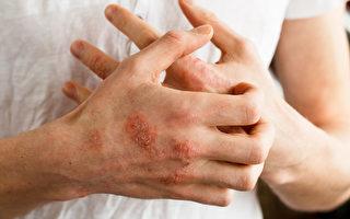 黃國威:全身爆發濕疹找中醫還有用嗎?