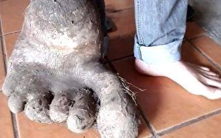 巴西农夫挖出怪马铃薯 像有脚趾的巨人脚掌