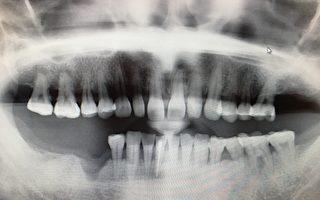 拔牙后想做植牙? 要保护牙床骨 尽快补骨