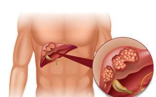 10个人有3个脂肪肝 你应了解的肝癌风险因素