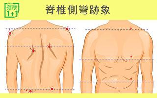 2种方法看是否脊椎侧弯 不治当心过早退化