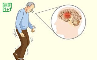 帕金森讓大腦退化!常做2件事預防、改善