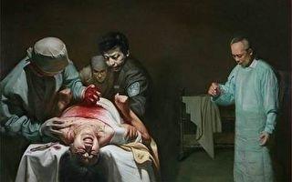 曹長青:法輪功學員被摘器官是真的嗎?