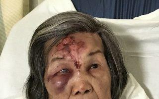 失忆亚裔老妇身份获确认  与家人团聚