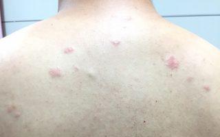 背上不痛不癢紅疹反覆出現 竟是罕見皮膚淋巴癌