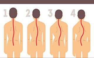 每个人都有脊椎侧弯?破解12大侧弯迷思