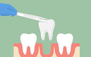 什麼樣的牙該拔掉?拔牙必知3件事
