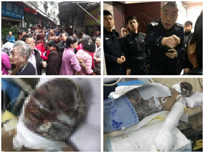 武漢樂投受害人維權 燒傷難友陷絕境籲關注