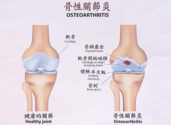 退化性關節炎(骨關節炎)的形成過程。(談古論今話中醫提供)