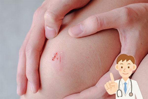 超实用!伤口正确处理法 好得快不易留疤