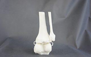 """干细胞""""种子""""注入三维打印支架助受损骨骼复原"""