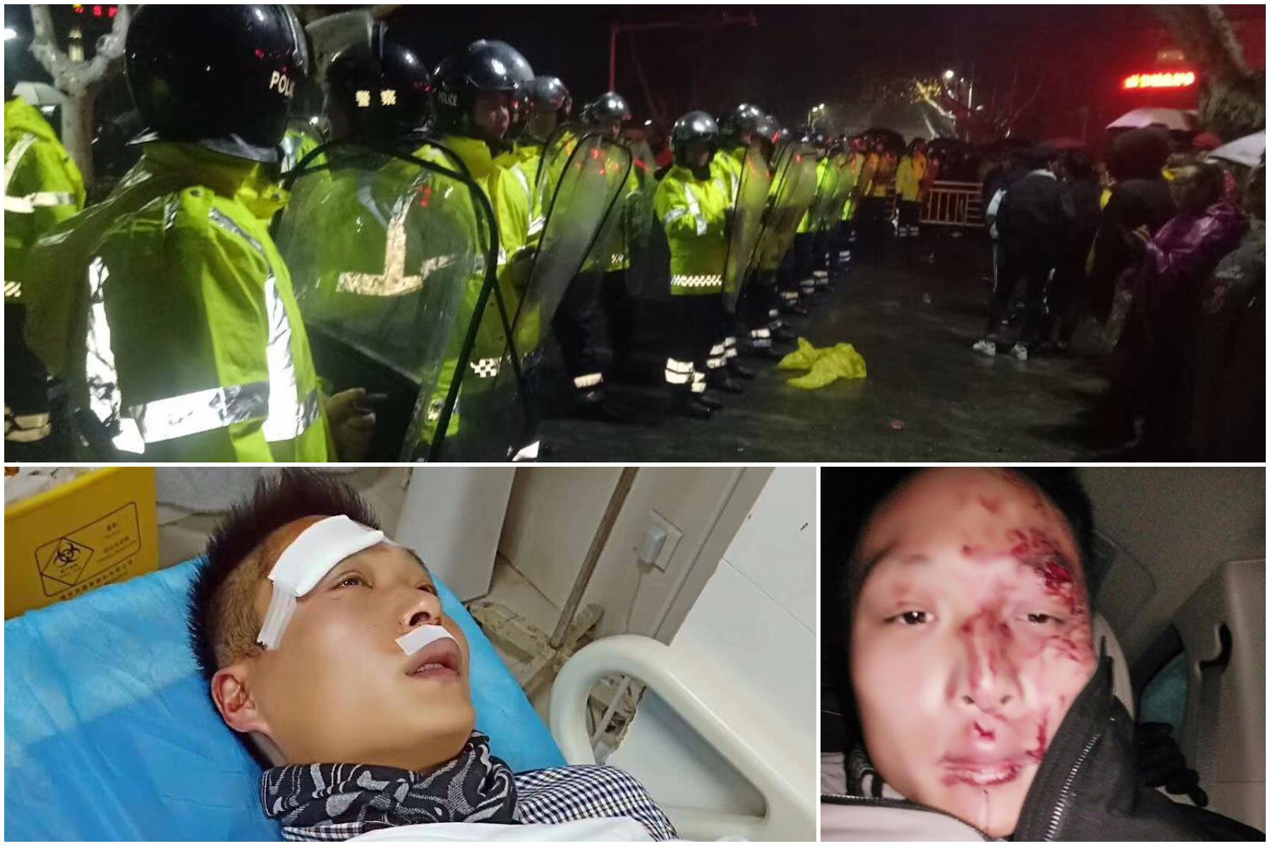 金湖疫苗受害家長抗議升級 縣委書記被圍毆