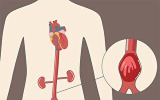 腹主动脉瘤多无症状,高风险人群应该尽早做检查。