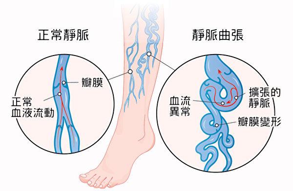 静脉曲张的症状和形成原理。