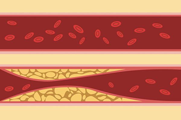 血脂中的甘油三酯(三酸甘油脂)高,也會影響心血管健康。如何降低甘油三酯?